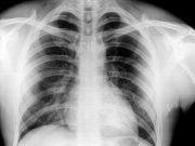 X-Ray of Chest for the Health Examination Working Holiday Visa Australia