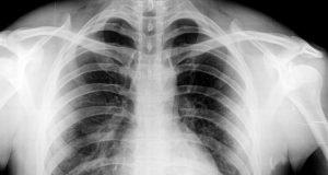 Röntgenbild Brust für medizinischen Test Working Holiday Visum Australien